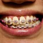 braces-12172009